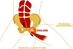 pubalgia-sintomi-cause-rimedi-trattamenti-naturali