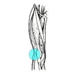 sindrome-banda-ileotibiale-osteopatia
