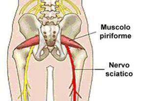 sindrome-piriforme